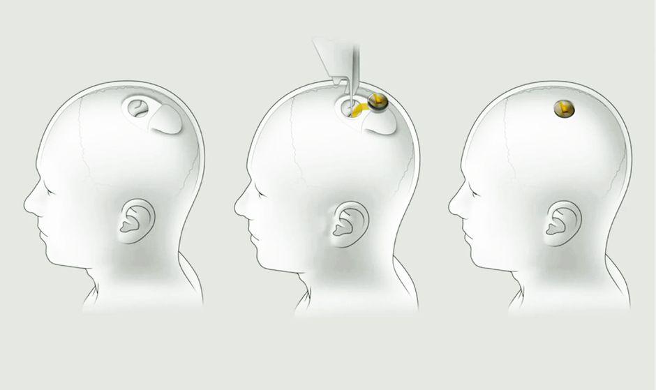neuralink-installation